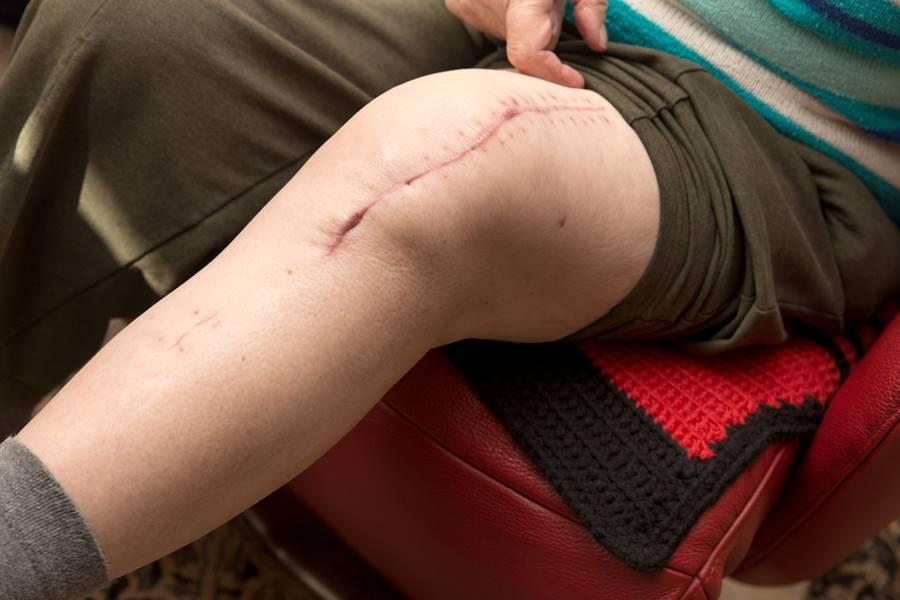 Pasi de recuperare dupa operatia la genunchi